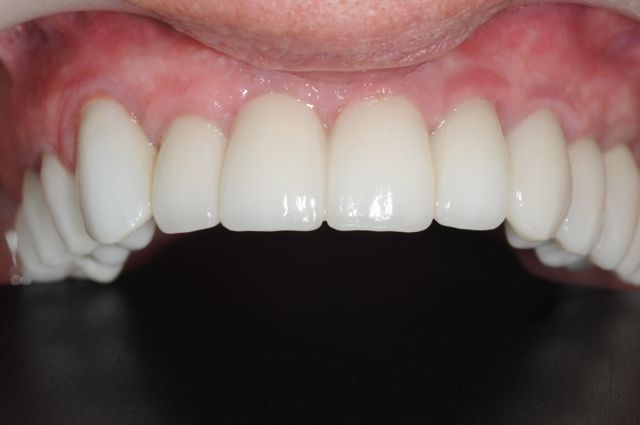 dental implants with fixed bridge- implant dentist bethesda
