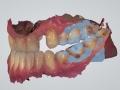3 shape digital scan impression of dental implant kazemi oral surgery bethesda