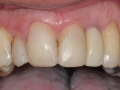 lateral incisor dental implant with customized abutment and crown restoration labial kazemi oral surgery bethesda