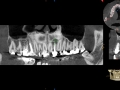 lateral incisor with cyst and bone loss kazemi oral surgery bethesda