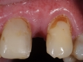 missing lateral incisor after bone grafting kazemi oral surgery bethesda