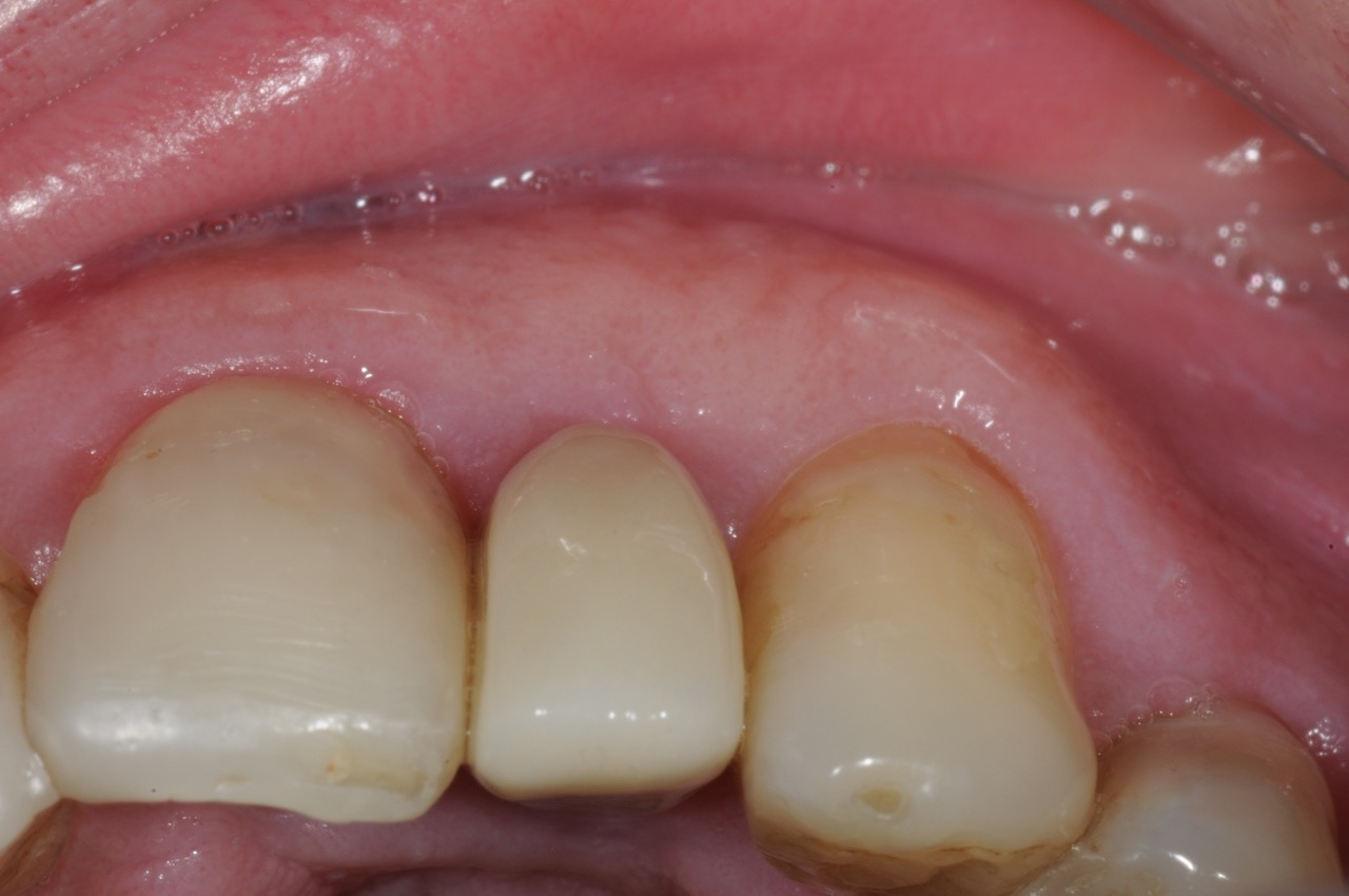 lateral incisor dental implant with customized abutment and crown restoration kazemi oral surgery bethesda