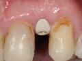lateral incisor dental implant with customized healing abutment- healed kazemi oral surgery bethesda