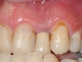 lateral incisor with periapical cyst infection kazemi oral surgery bethesda