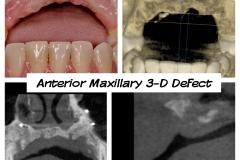 3.-anterior-maxillary-major-defect-before-bone-graft-connective-tissue-graft-kazemi-oral-surgery-dental-implants