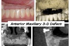 4.-anterior-maxillary-major-defect-after-bone-graft-connective-tissue-graft-kazemi-oral-surgery-dental-implants