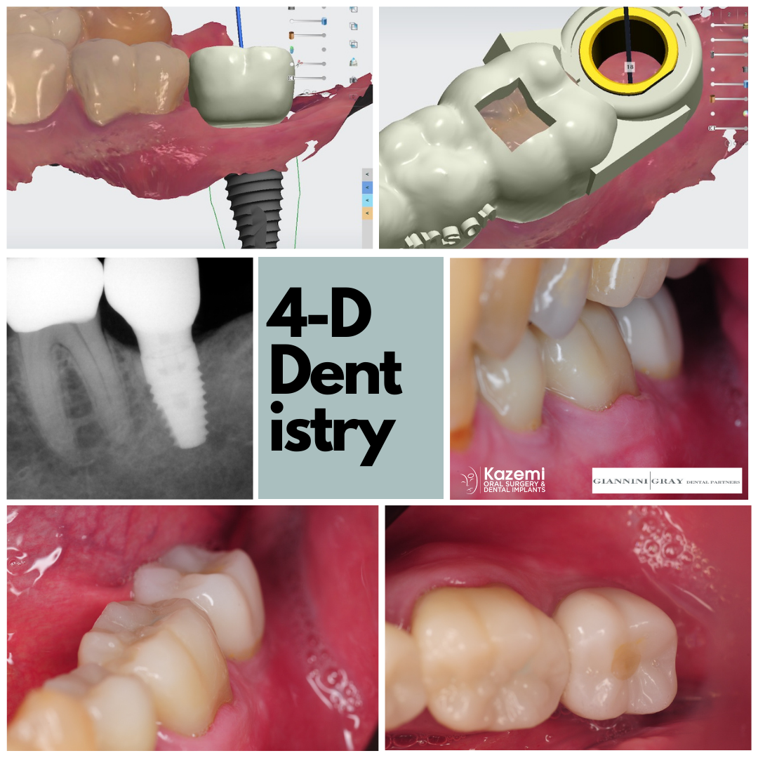 4-dimensional-dentistry-dental-implant-molar-digital-workflow-kazemi-oral-surgery-bethesda-MD
