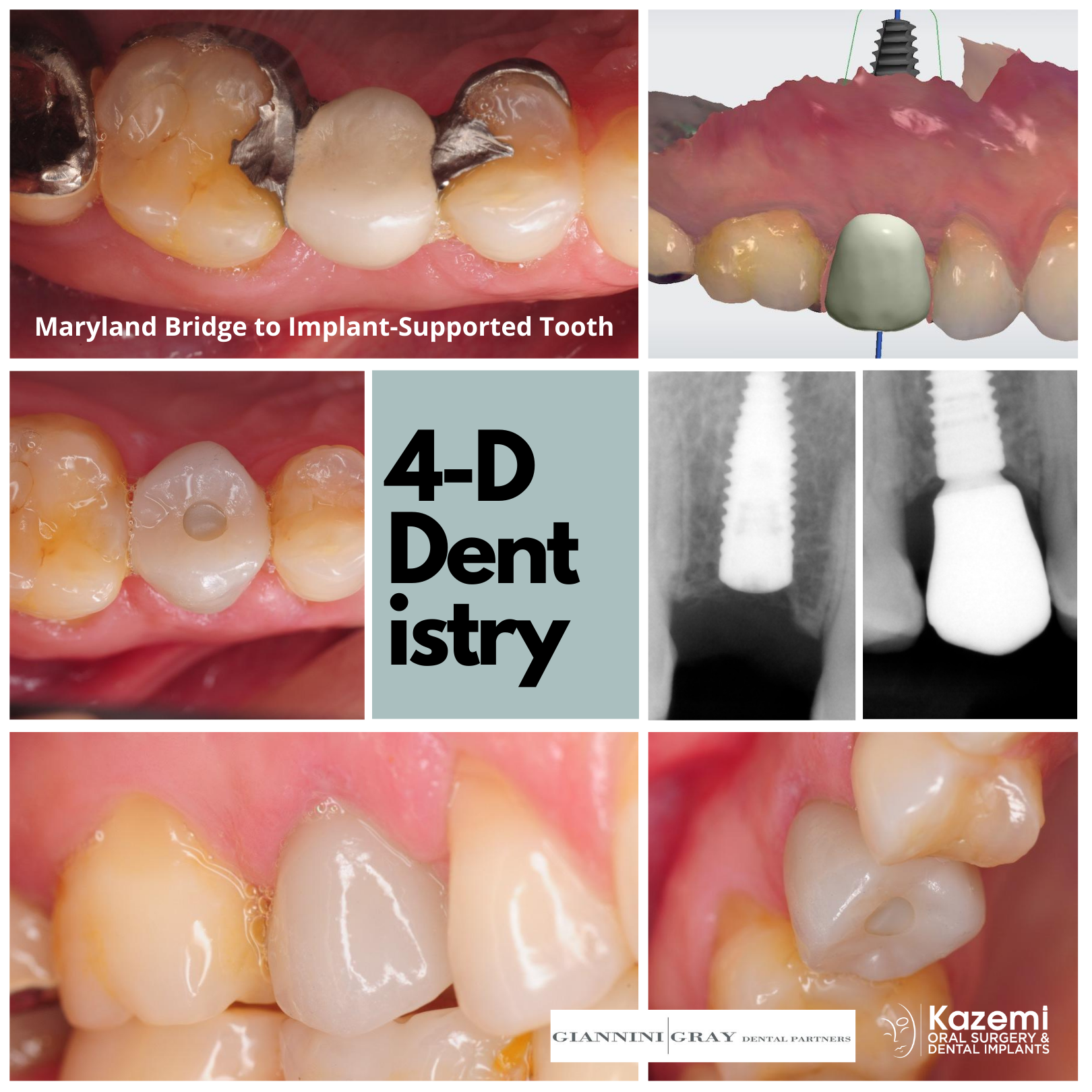 Maryland-bridge-to-dental-implant-supported-tooth-4-dimensional-dentistry-kazemi-oral-surgery
