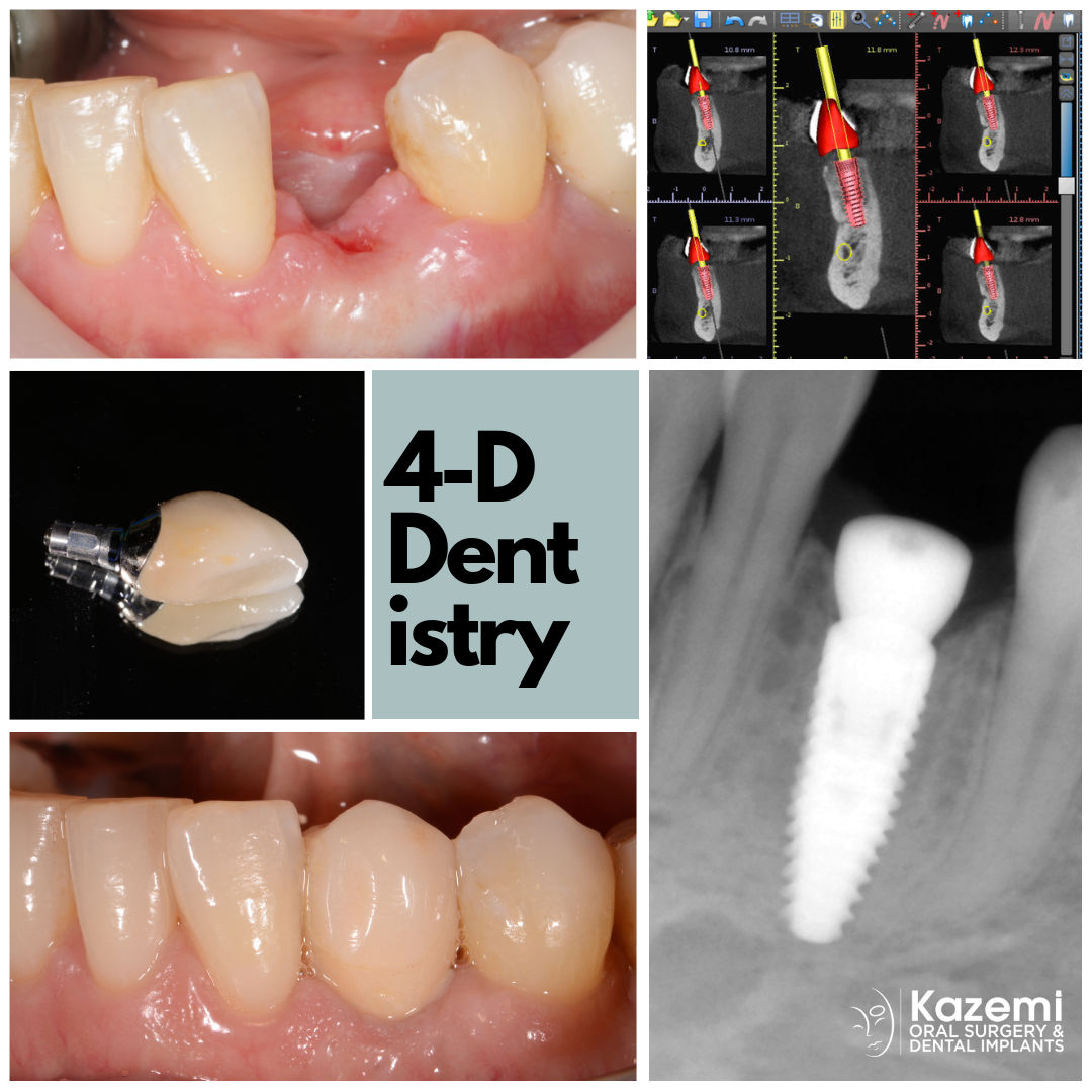 best-dental-implant-dentist-premolar-custom-abutment-crown-kazemi-oral-surgery-bethesda-4-dimensional-dentistry