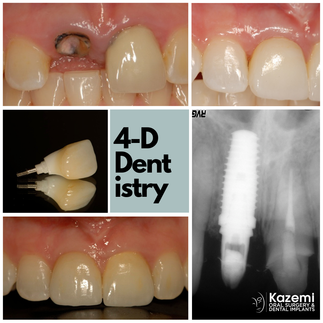 broken-incisor-dental-implant-custom-crown-kazemi-oral-surgery-4-dimensional-dentistry