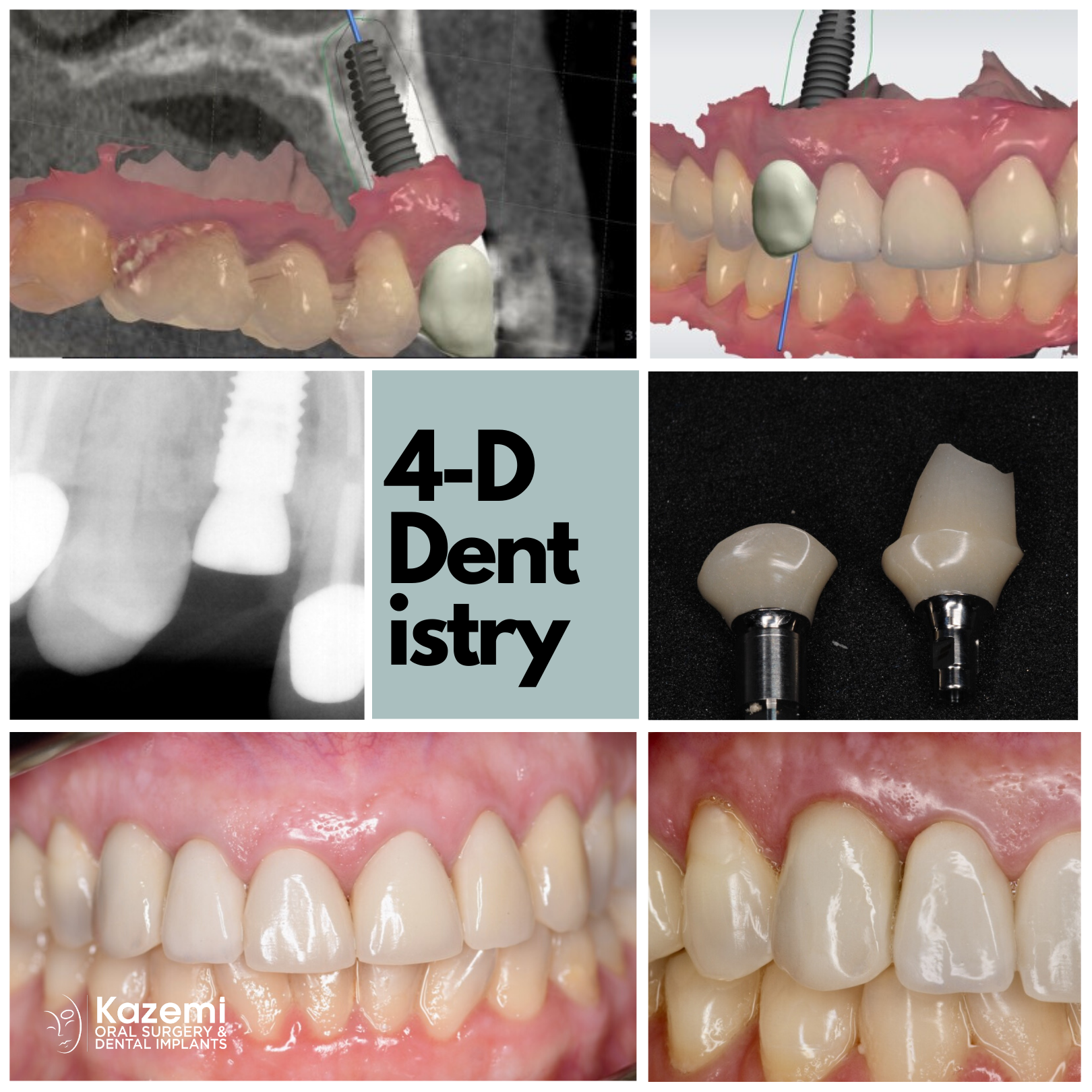 dental-implant-canine-digital-dentistry-customized-healing-abutment-partial-extraction-therapy-kazemi-oral-surgery