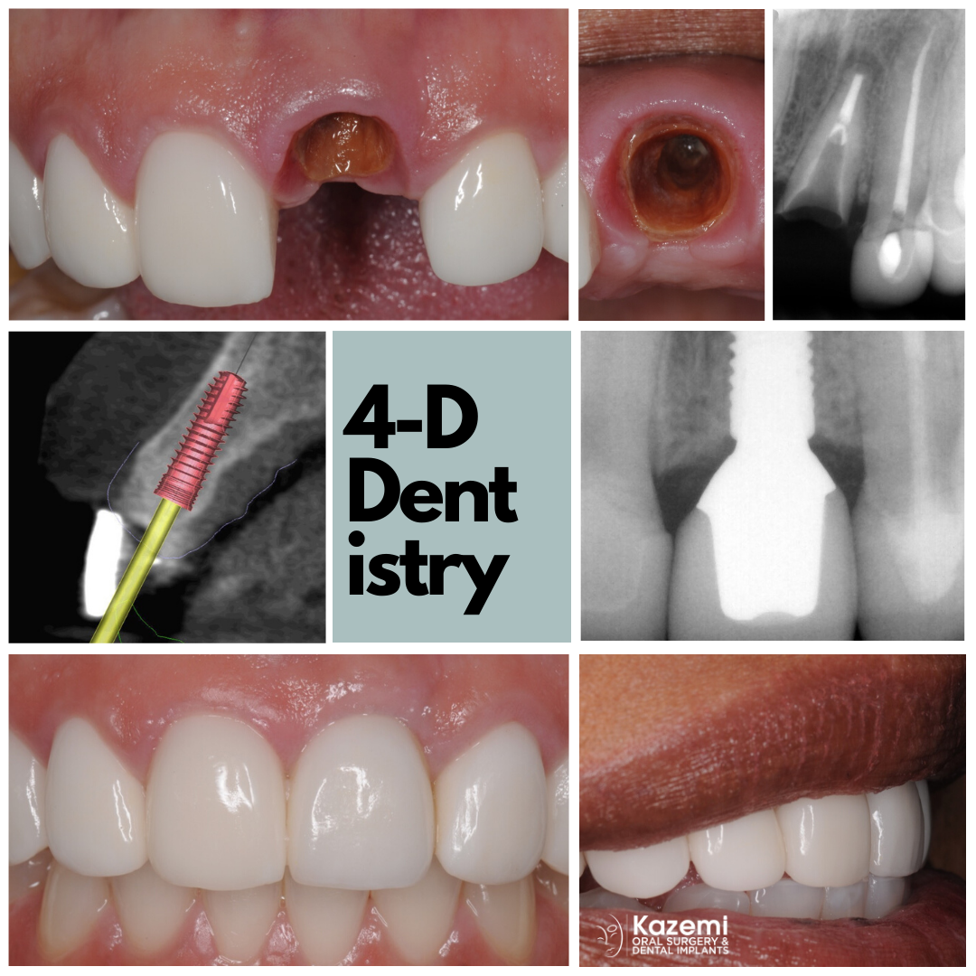 dental-implant-central-incisor-smile-kazemi-oral-surgery-best-implant-dentist