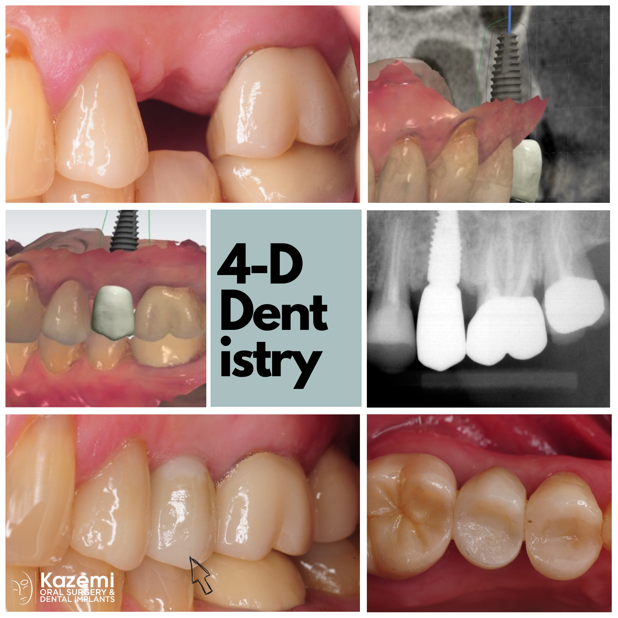 dental-implant-trios-3-shape-straumann-kazemi-oral-surgery-best-bethesda-implant-dentist-