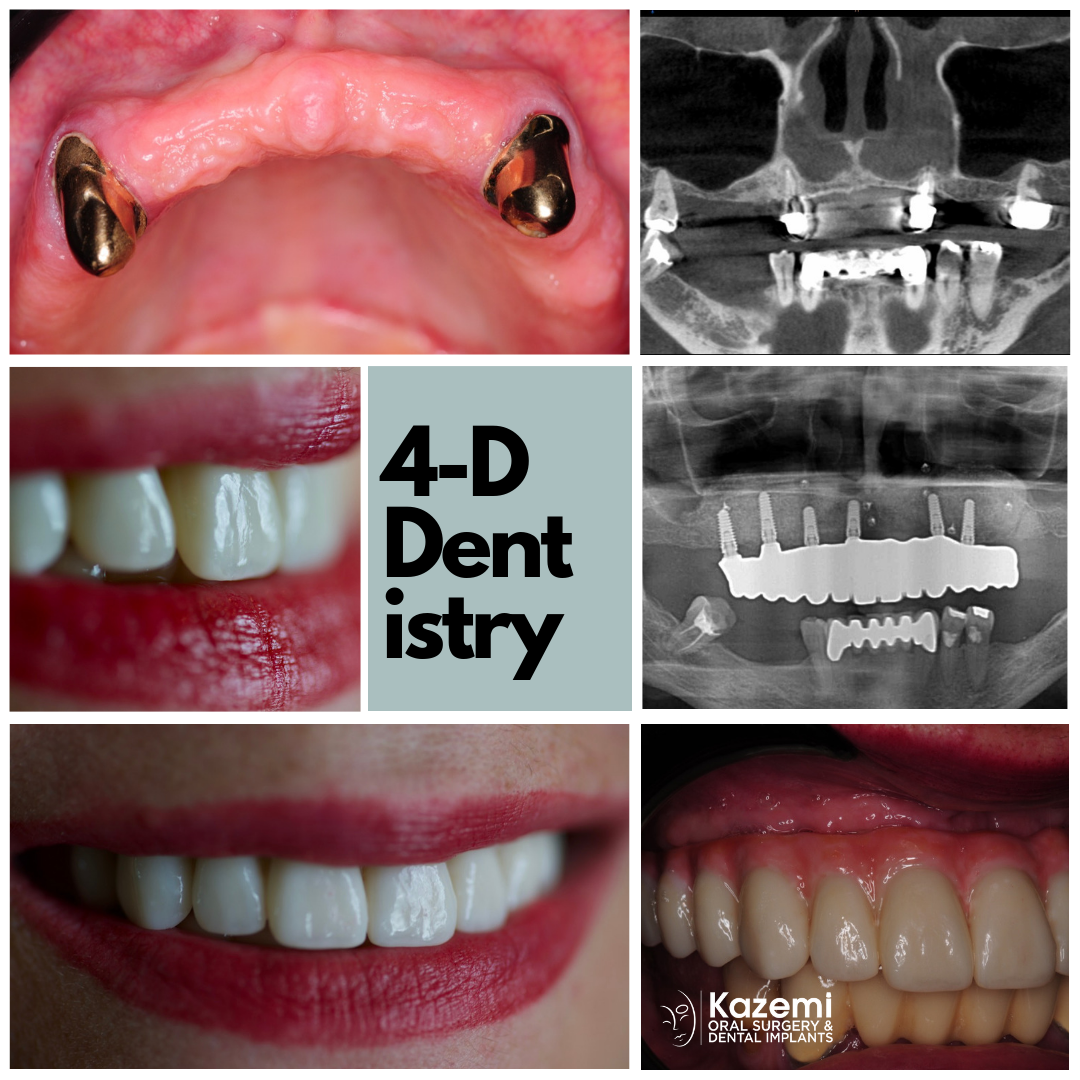full-arch-dental-implants-sinus-lift-bone-graft-4-dimensional-dentistry