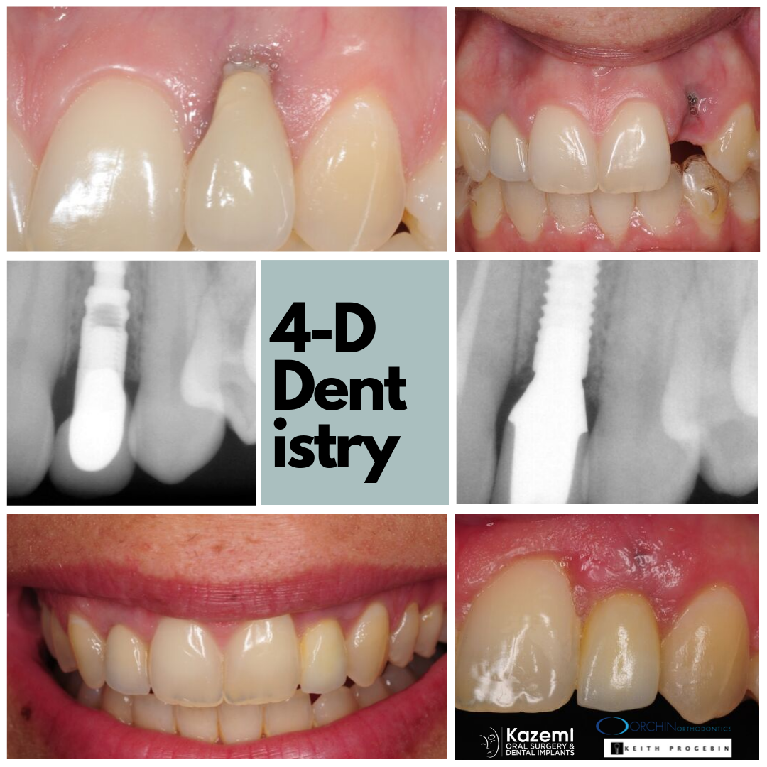 gum-recession-dental-implant-dark-long-crown-kazemi-oral-surgery-bethesda-4-dimensional-dentistry