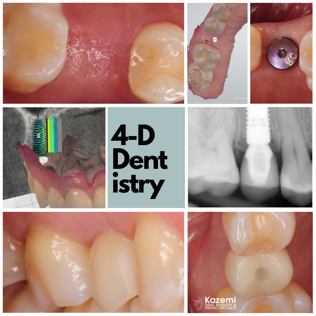premolar-dental-implant-best-dentist-bethesda-4-dimensional-dentistry