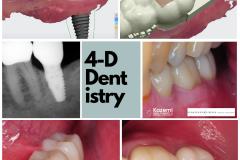 4-dimensional-dentistry-dental-implant-molar-digital-workflow-kazemi-oral-surgery-bethesda-MD