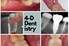 Byerly-Kazemi-oral-surgery-dental-implants-4-dimensional-dentistry