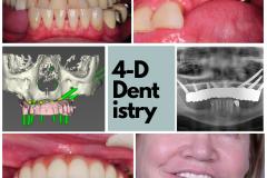 Mueller- 4-D Dentistry