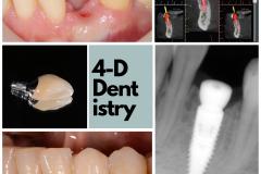 best-dental-implant-dentist-premolar-custom-abutment-crown-kazemi-oral-surgery-bethesda-4-dimensional-dentistry