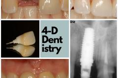 broken-incisor-dental-implant-custom-crown-kazemi-oral-surgery-4-dimensional-dentistry