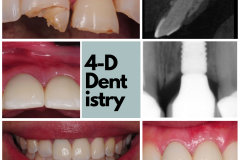 broken-tooth-replaced-with-dental-implant-kazemi-oral-surgery-4-dimensional-dentistry