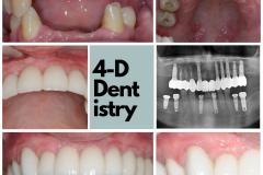 complete-implants-no-bone-cutting-bridge-kazemi-oral-surgery-4-dimensional-dentistry