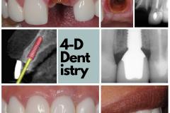 dental-implant-central-incisor-smile-kazemi-oral-surgery-best-implant-dentist