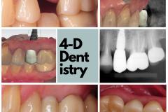 dental-implant-trios-3-shape-straumann-kazemi-oral-surgery-best-bethesda-implant-dentist-