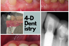 digital-dental-implant-dentistry-best-oral-surgeon-kazemi-oral-surgery-4-dimensional-dentistry