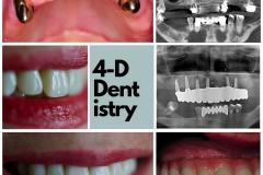 full-arch-dental-implants-sinus-lift-bone-graft-4-dimensional-dentistry