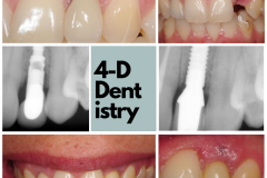 gum-recession-dental-implant-dark-long-crown-kazemi-oral-surgery-bethesda-4-dimensional-dentistry