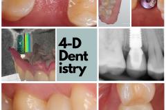 premolar-dental-implant-best-dentist-bethesda-4-dimensional-dentistry