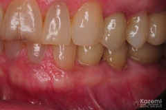 7.-digital-dental-implant-natrual-looking-easy-to-clean02