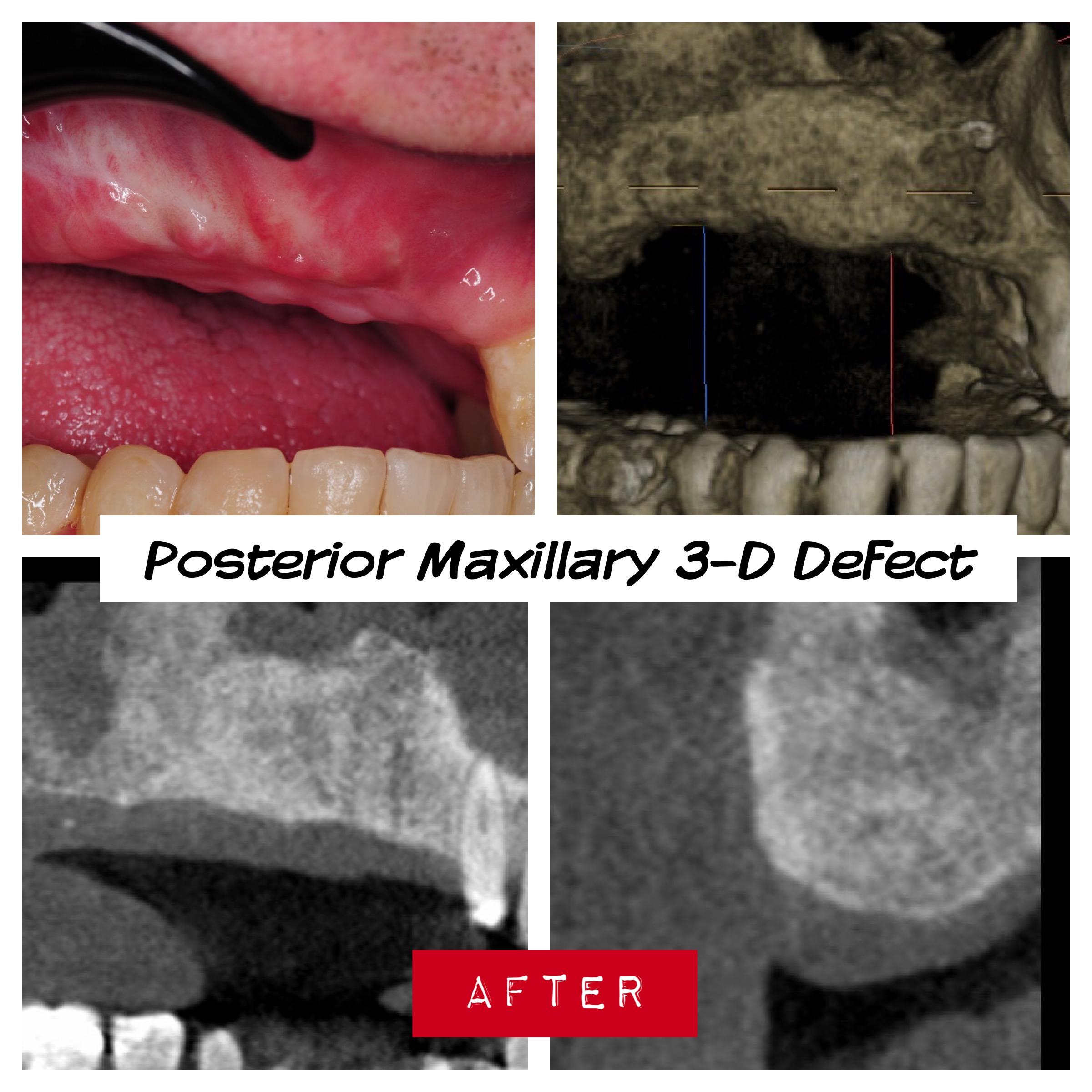 2.-posterior-maxilla-defect-after-osteogenesis-distraction-guided-bone-regenerationkazemi-oral-surgery-dental-implants