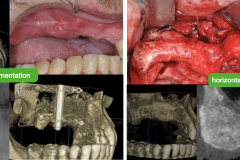 2.-maxillary-3-d-deficiency-osteogenesis-distraction-onlay-bone-graft-dental-implants-kazemi-oral-surgery-2