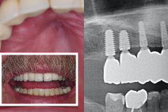 4.-maxillary-3-d-deficiency-osteogenesis-distraction-onlay-bone-graft-dental-implants-kazemi-oral-surgery