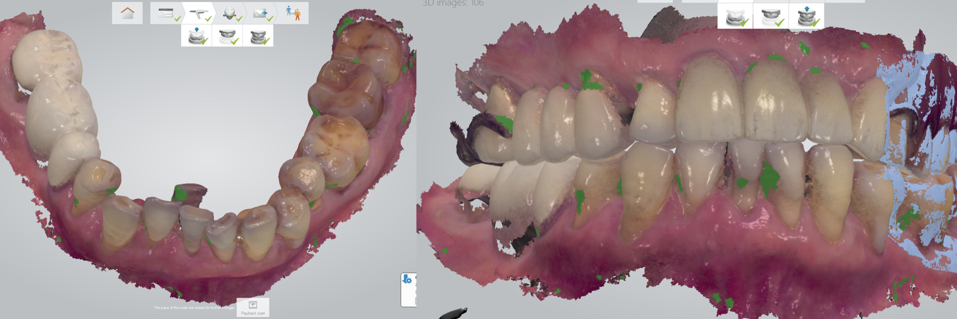 1_Digital-Workflow-for-Full-Arch-Implant-Supported-Teeth-Chrome-GuidedSmile-Kazemi-Oral-Surgery-Bethesda-Implant-Dentist.006