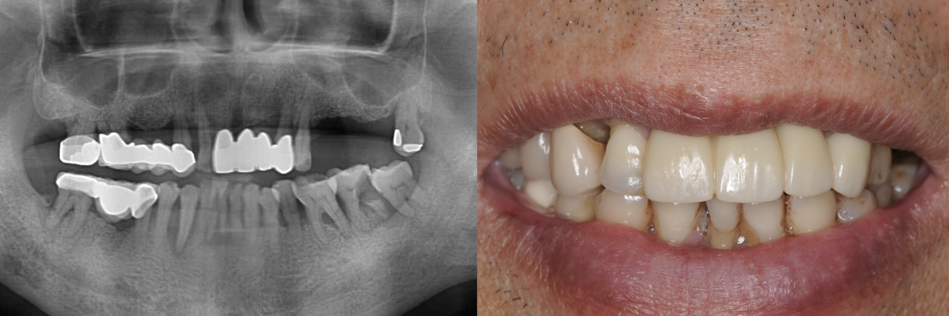 Digital-Workflow-for-Full-Arch-Implant-Supported-Teeth-Chrome-GuidedSmile-Kazemi-Oral-Surgery-Bethesda-Implant-Dentist.002