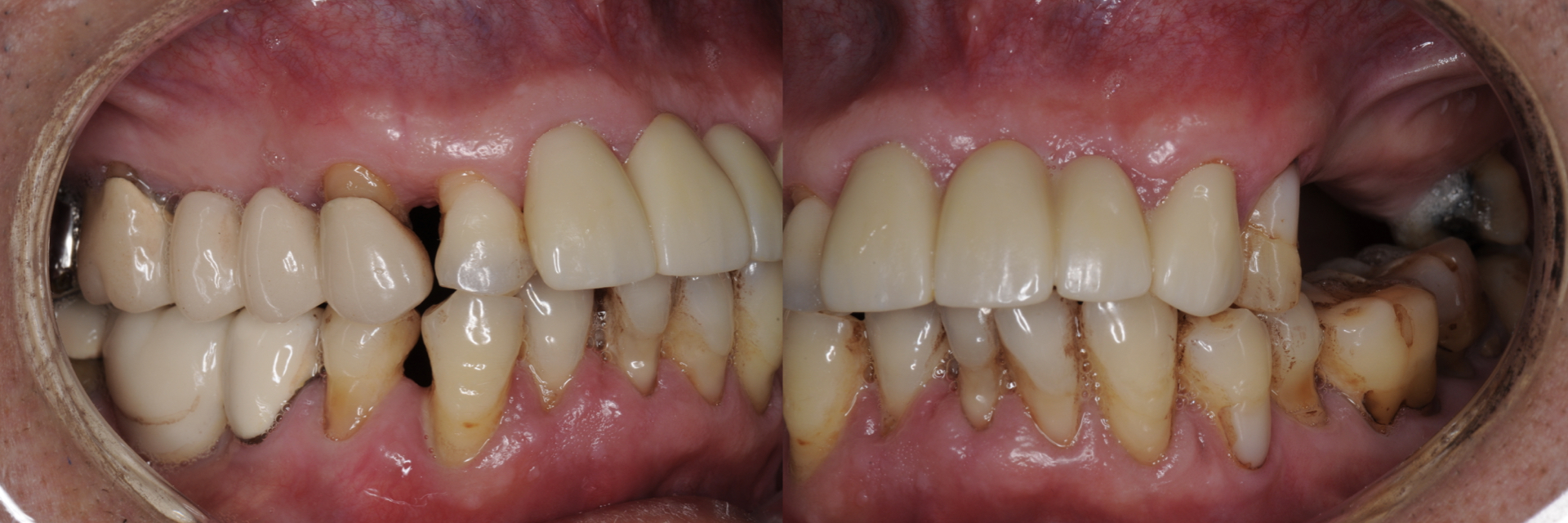 Digital-Workflow-for-Full-Arch-Implant-Supported-Teeth-Chrome-GuidedSmile-Kazemi-Oral-Surgery-Bethesda-Implant-Dentist.003