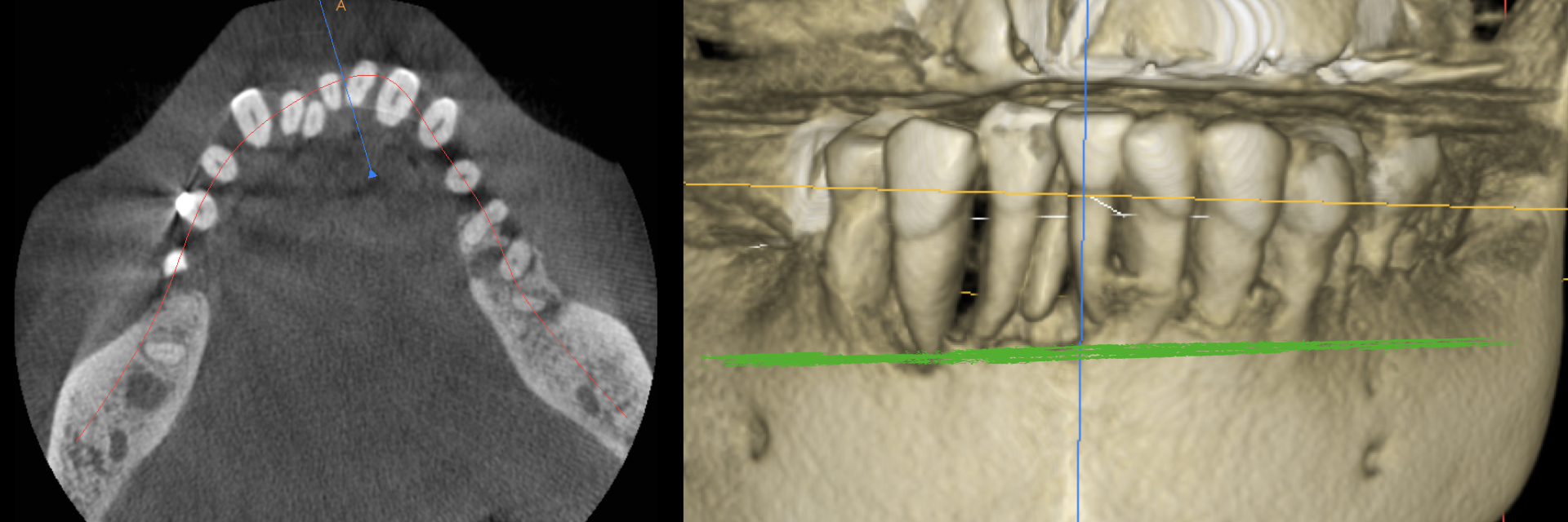 Digital-Workflow-for-Full-Arch-Implant-Supported-Teeth-Chrome-GuidedSmile-Kazemi-Oral-Surgery-Bethesda-Implant-Dentist.005