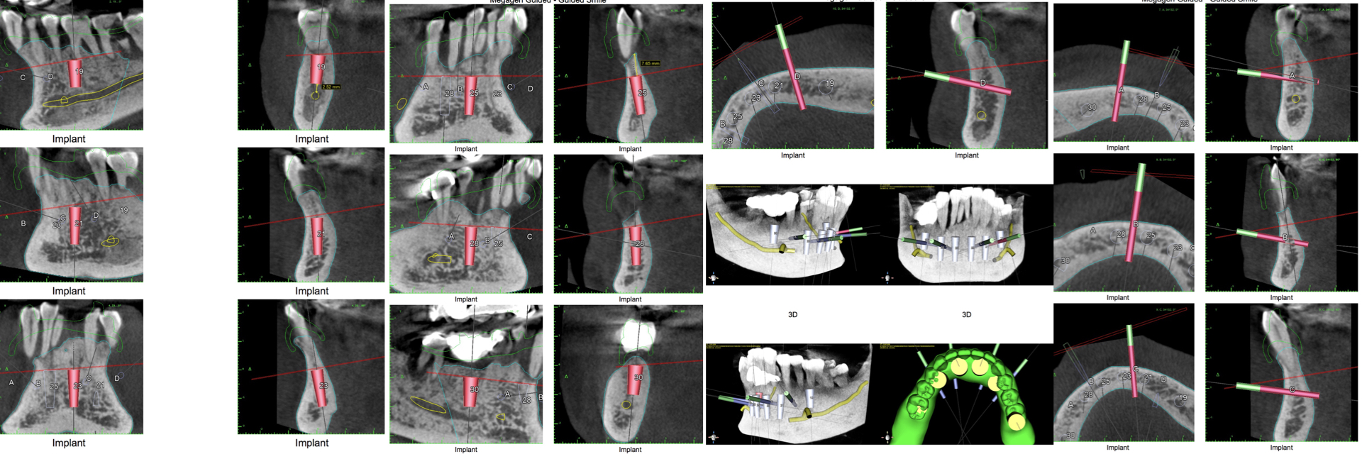 Digital-Workflow-for-Full-Arch-Implant-Supported-Teeth-Chrome-GuidedSmile-Kazemi-Oral-Surgery-Bethesda-Implant-Dentist.013