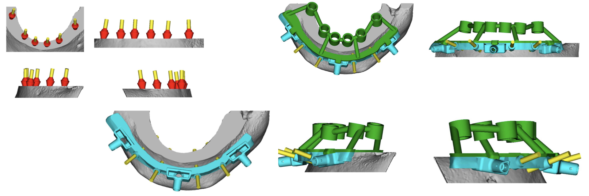 Digital-Workflow-for-Full-Arch-Implant-Supported-Teeth-Chrome-GuidedSmile-Kazemi-Oral-Surgery-Bethesda-Implant-Dentist.014