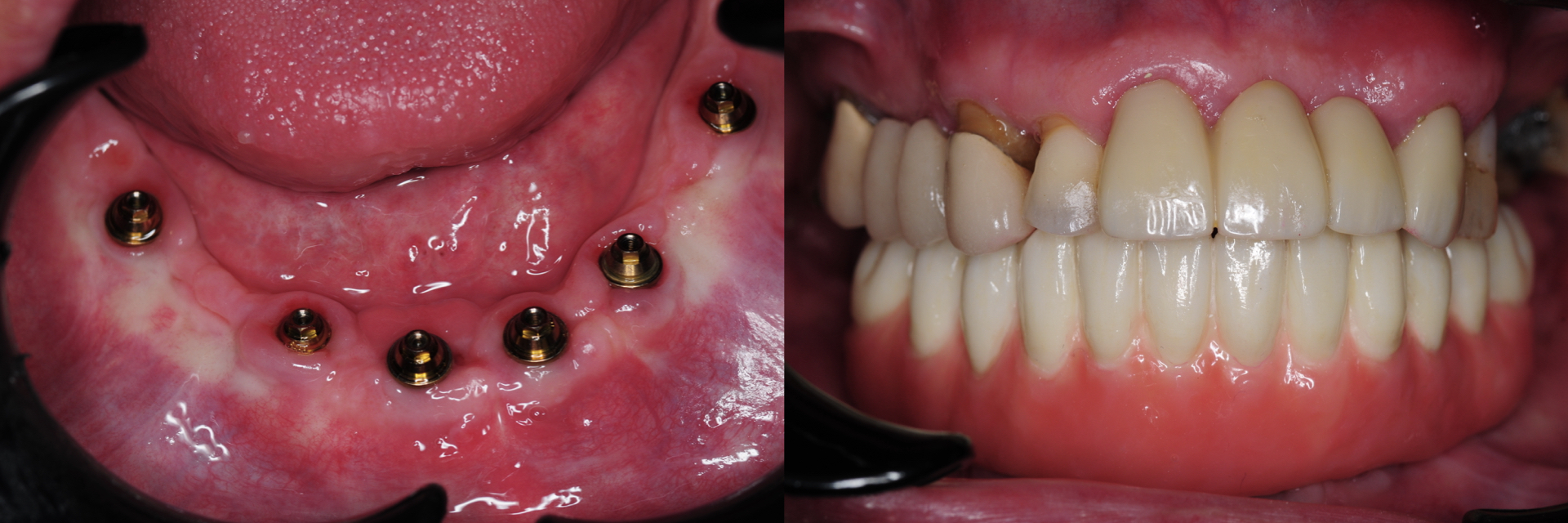Digital-Workflow-for-Full-Arch-Implant-Supported-Teeth-Chrome-GuidedSmile-Kazemi-Oral-Surgery-Bethesda-Implant-Dentist.016