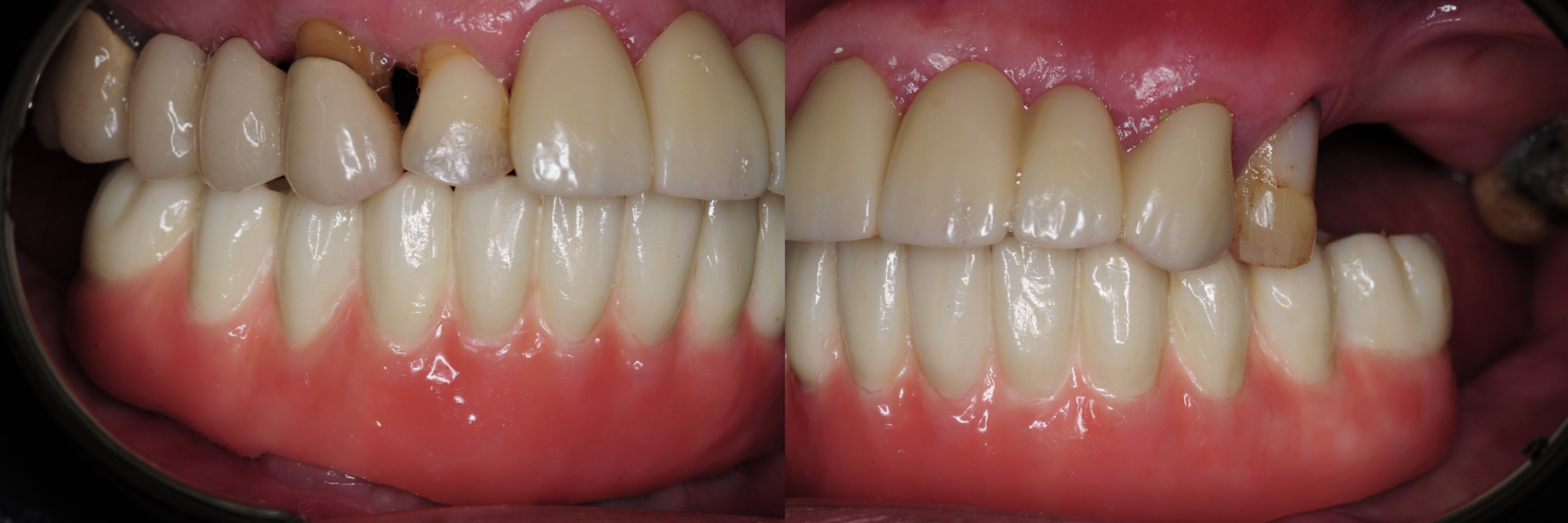 Digital-Workflow-for-Full-Arch-Implant-Supported-Teeth-Chrome-GuidedSmile-Kazemi-Oral-Surgery-Bethesda-Implant-Dentist.017