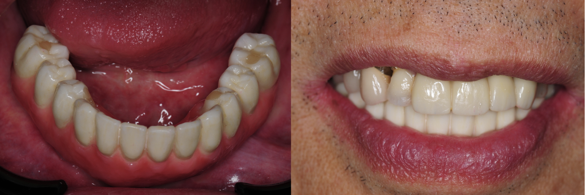 Digital-Workflow-for-Full-Arch-Implant-Supported-Teeth-Chrome-GuidedSmile-Kazemi-Oral-Surgery-Bethesda-Implant-Dentist.018