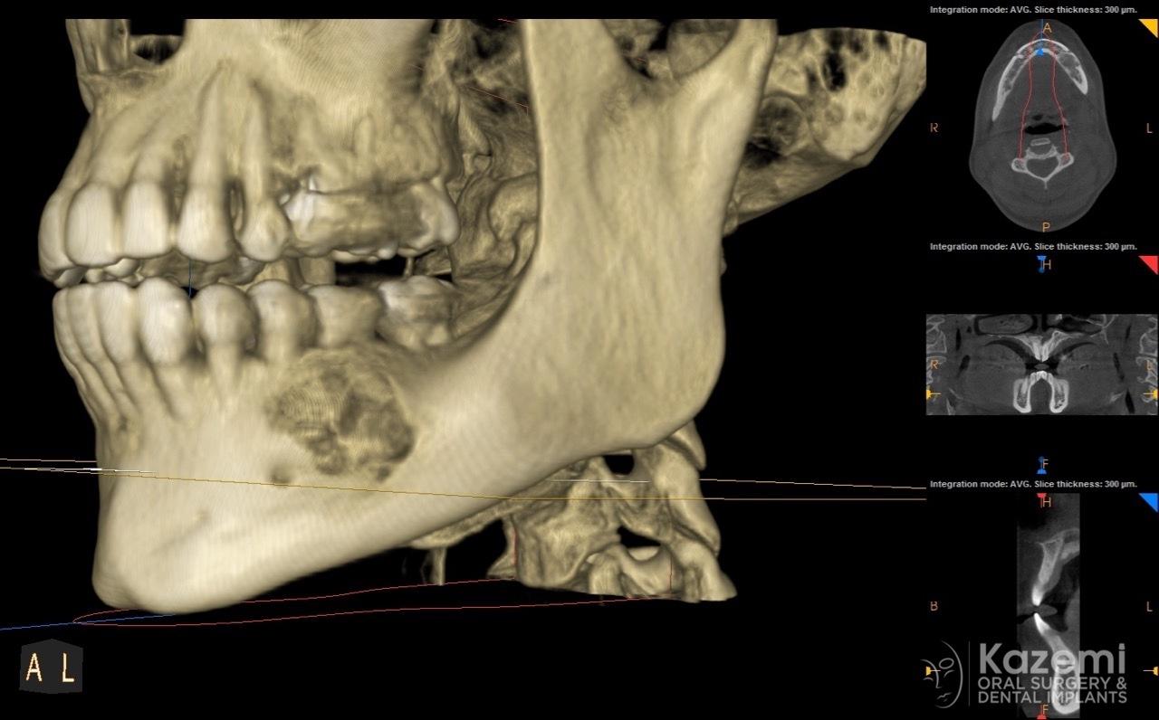 focal cemento-osseous dysplasia kazemi oral surgery02