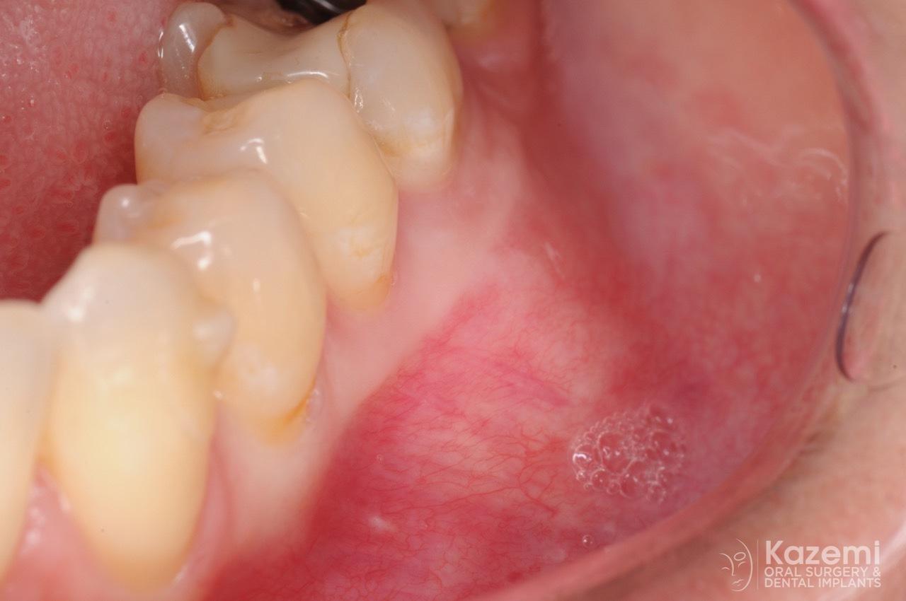 focal cemento-osseous dysplasia kazemi oral surgery01