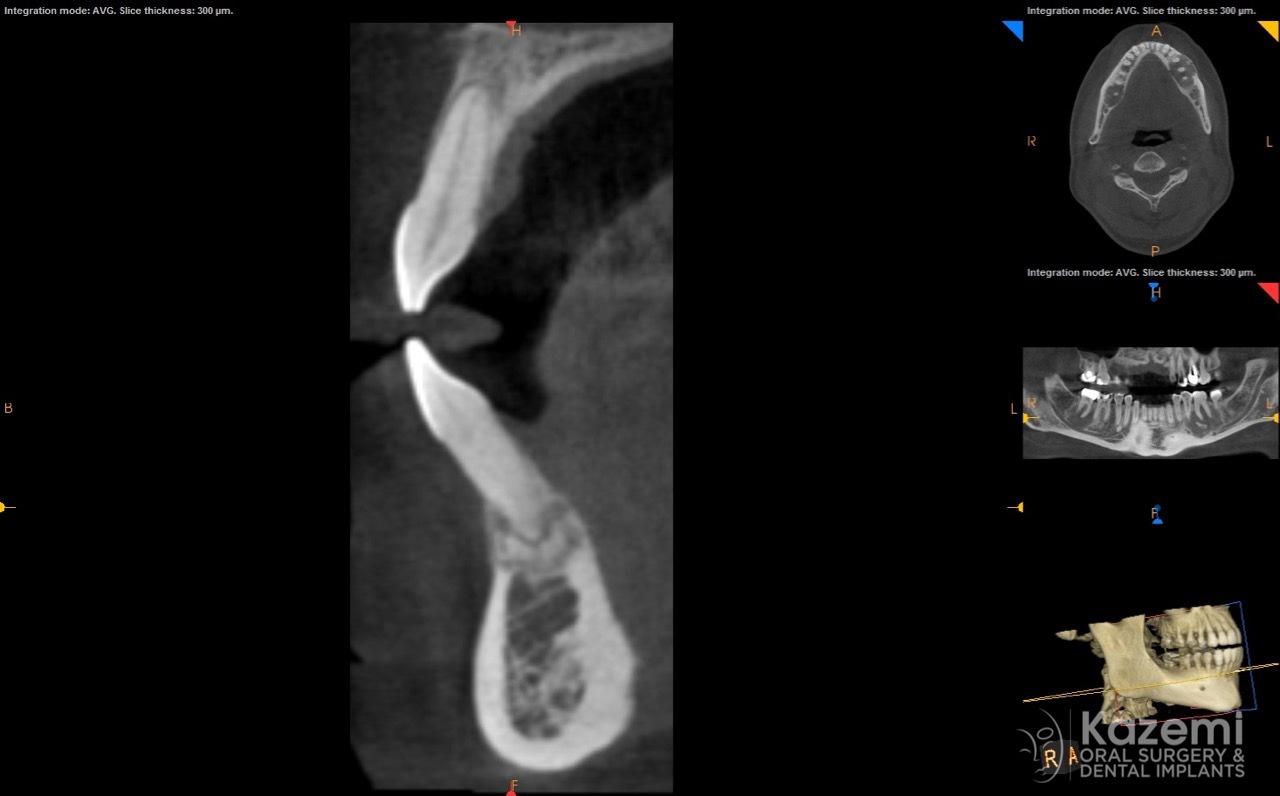focal cemento-osseous dysplasia kazemi oral surgery09