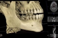 focal cemento-osseous dysplasia kazemi oral surgery03